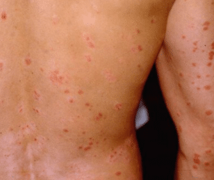 red-dots-on-skin-causes-1