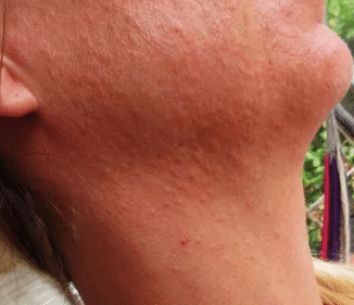 severe heat bumps on face