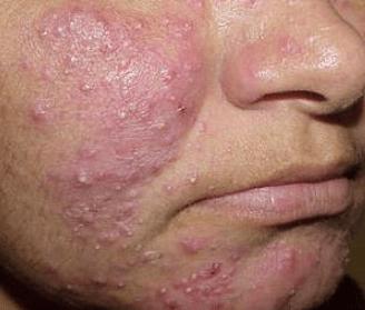 severe heat rash on the face