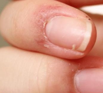 skin peeling on fingers