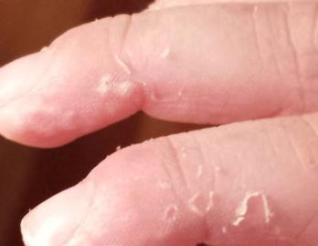 skin-peeling-on-fingers-picture-1