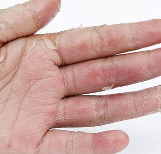 skin peeling on palms and fingers