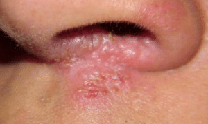 sores-in-nose-picture-1