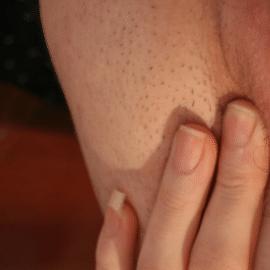 vulva-itching-worse-at-night-1