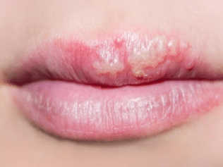 white-bumps-on-lips-1
