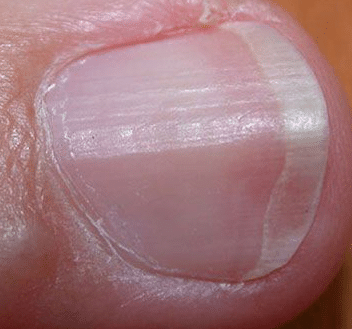 lines on nails causes