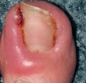 infected-ingrown-toenail-1