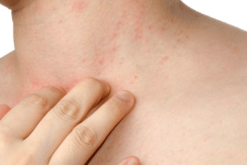 skin rashes that itch