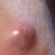 lump-on-vagina-1
