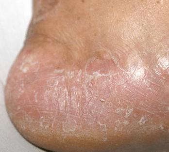 skin peeling on feet picture