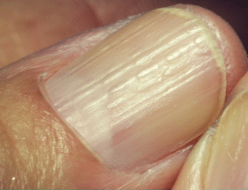 vertical ridges on nails