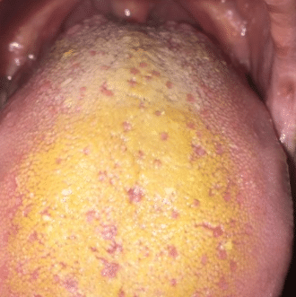 yellow tongue surface
