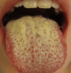 yellowish tongue surface causes
