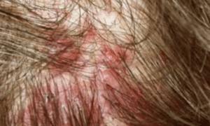 Sores-on-scalp