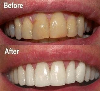 baking soda on teeth