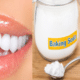 baking-soda-on-teeth-1