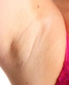 cyst underarm