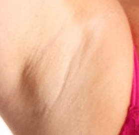 bump-like-lump-under-armpit-1