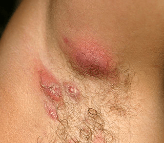 bump-under-armpit-1