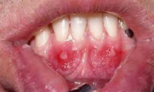 home remedy for canker sore under tongue