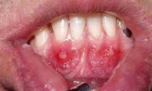 canker-sore-on-gums-1