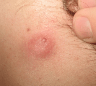 cyst-on-neck-picture-1