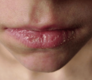 dry lips causes