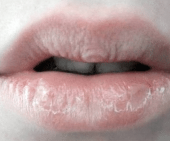 dry-lips-causes-1