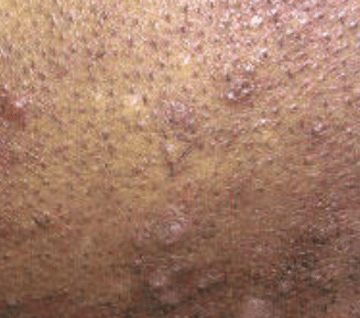 razor bumps on vag