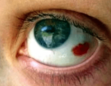 red spot on eye