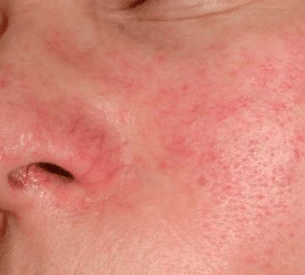 red-blotches-on-skin-1