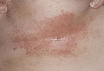 Dark patches under breast