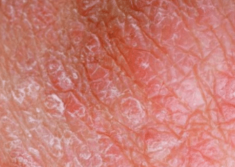white spots on skin from sunbeds