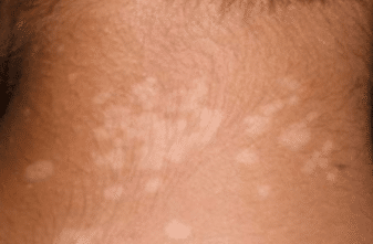 White-spots-on-skin-from-sun-1