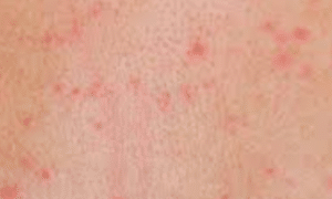 tiny-red-spots-on-skin-1