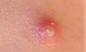 A-pimple-on-dick-std-1