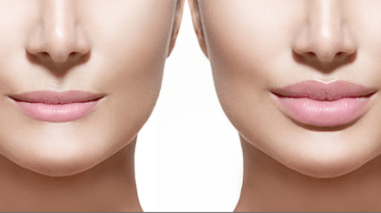 How-long-do-lip-fillers-last-1