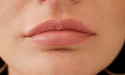 How long do lip swelling last