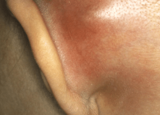 Causes of bumps behind ear