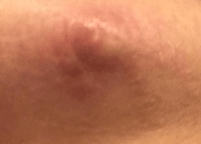 Lump-under-nipple-treatment-1