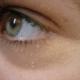 Milia-under-eye-1
