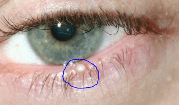 Small white bump on eyelid