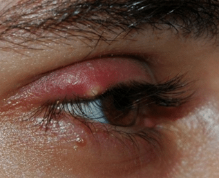 white-bump-on-eyelid-treatment-1