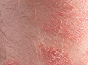 Dry-patches-on-face3