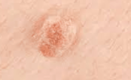 HPV-picture