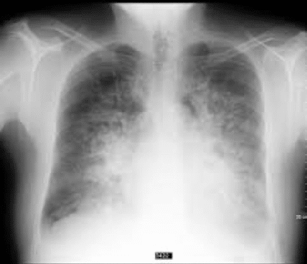 Chest x-ray: this kind of diagnostic tool helps determine to wither you have fluid in the lung due to heart problems or another type of disease like an infection. Infection in the lung may cause pneumonia.