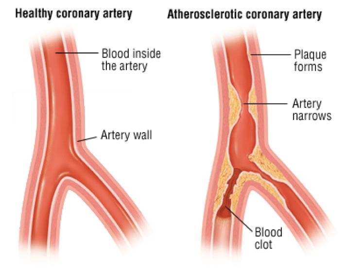 Healthy vs altherosclertic cornary artery