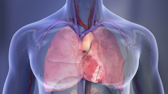 Pulmonary Edema Causes and Treatment