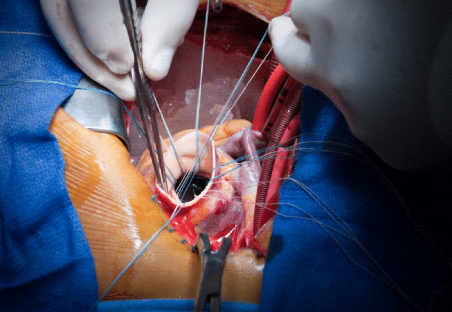 Surgical Therapy: Heart Failure Treatment