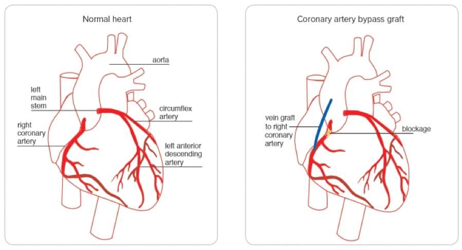 Heart Failure: Normal vs Coronary Artery Bypass Graft
